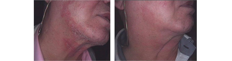 led kontaktowe zapalenie skóry przed i po
