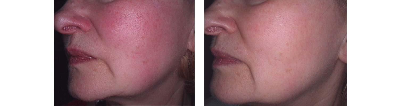 led-pre-rosacea-przed-i-po-skutki-leczenia