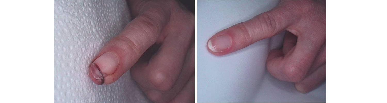 palec leczenie led skutki zabiegu