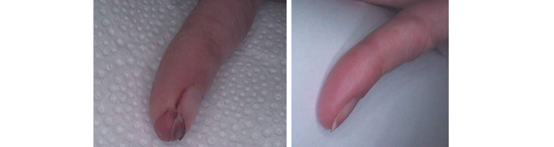 palec led przed i po