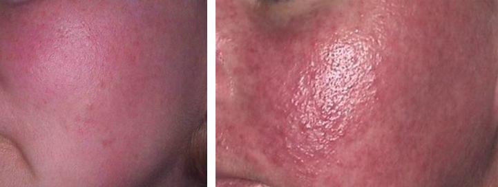 Efekty leczenia trądziku różowatego - przed i po