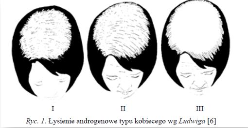 skala łysienie kobiece