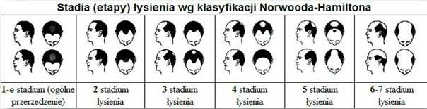 skala łysienie męskie