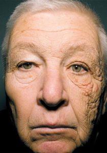 twarzy wystawiona na działanie promieni UV