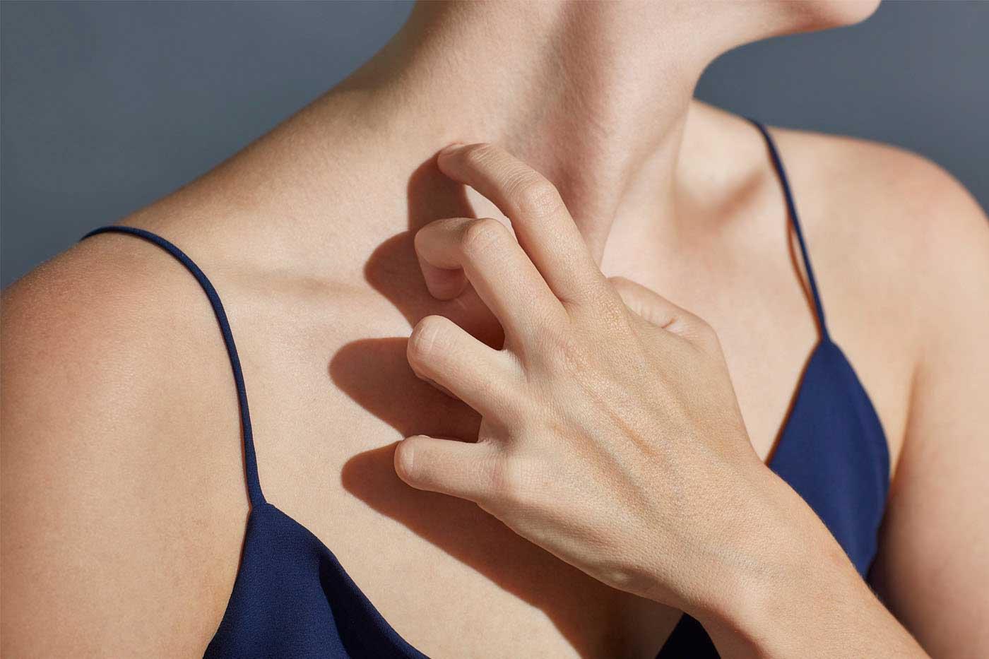 łuszczyca przewlekła i nawrotowa choroba skóry