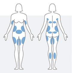 wskazania do zabiegu kriolipolizy