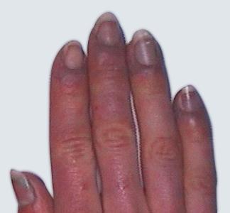 01 karboksyterapi przed zabiegiem