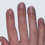 02 karboksyterapia po zabiegu