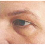 03 karboksyterapia worki pod oczami suwanie cieni pod oczami