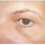 04 karboksyterapia wrocław leczenie worków od oczami