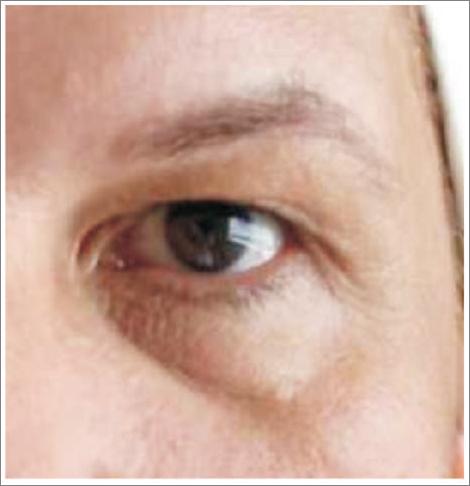05 karboksyterapia wrocław worki pod oczami leczenie cieni pod oczami
