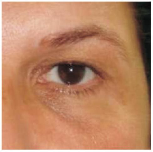 06 karboksyterapia wrocław worki po oczami usuwanie cieni pod oczami
