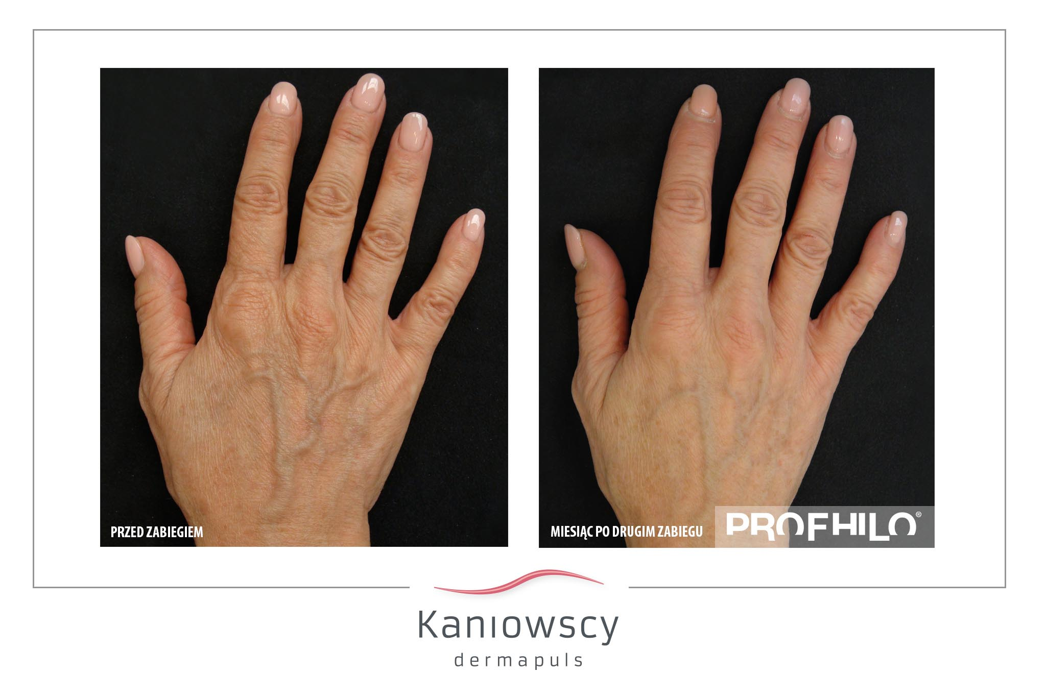 EFEKTY PROFHILO KANIOWSCY