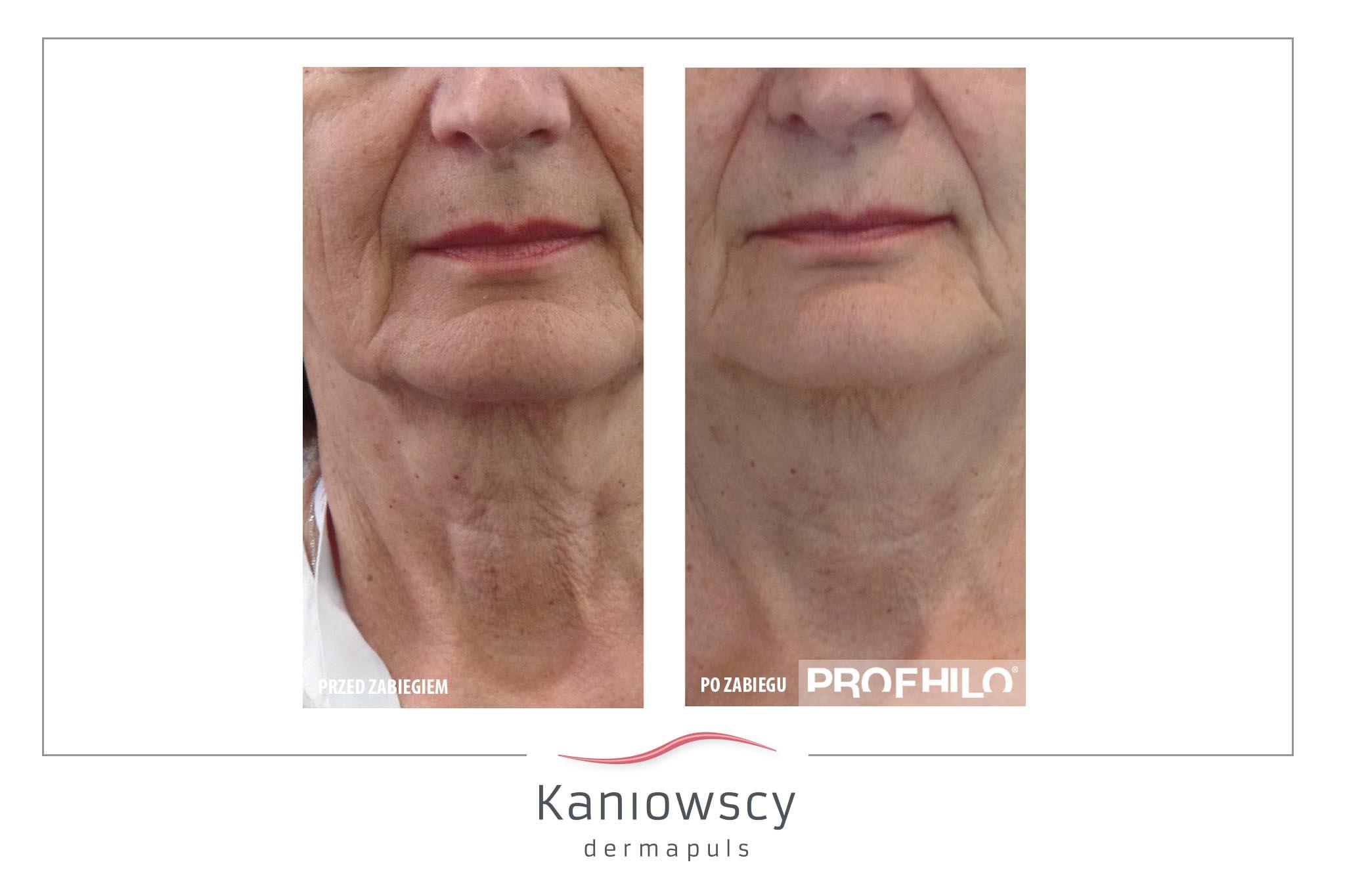 EFEKTY ZABIEG PROFHILO KANIOWSCY