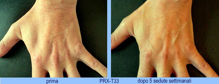 PRX T33 efekty zabiegi przed i po