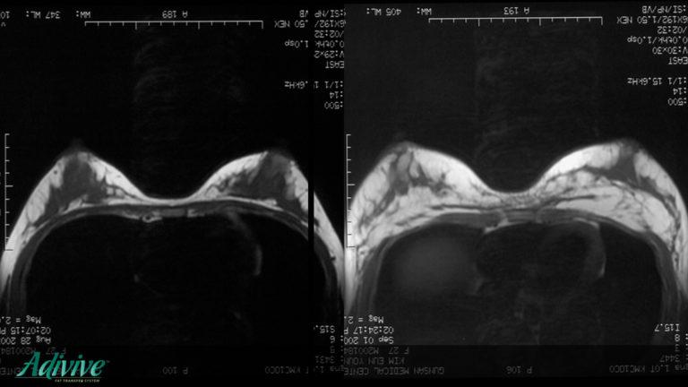 adivive piersi lipofillinfg wrocław wypełnienie tkanką tłuszczową