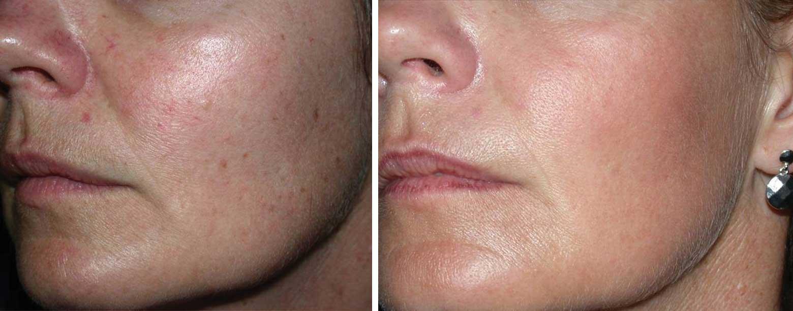 laser alma harmony twarz przed i po