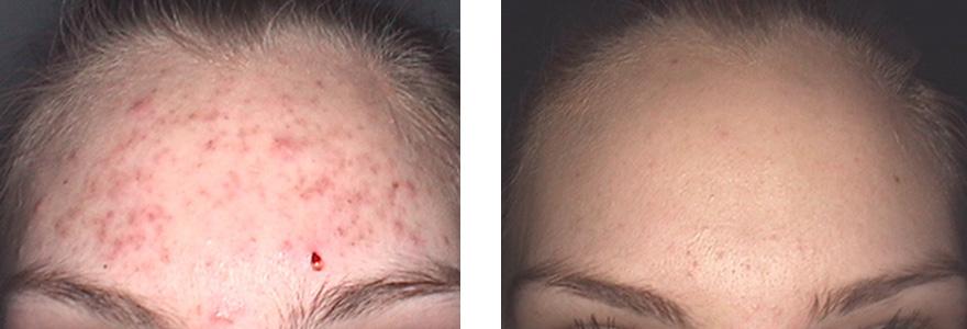 laser co2 przed i po zabiegu kaniowscy