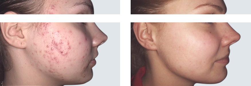 laser co2 przed i po zabiegu