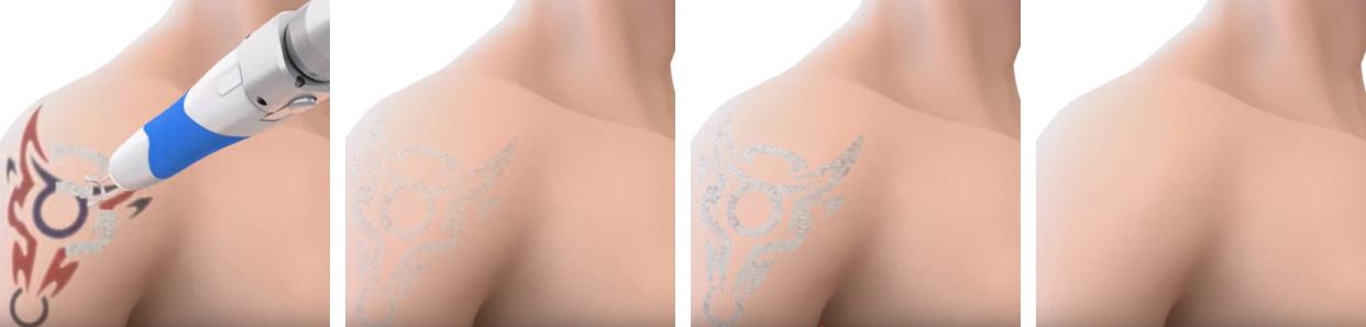 laser discovery pico przed i po zabiegu
