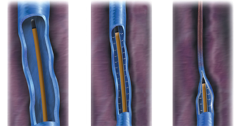 laserowe usuwanie żylaków-wroclaw
