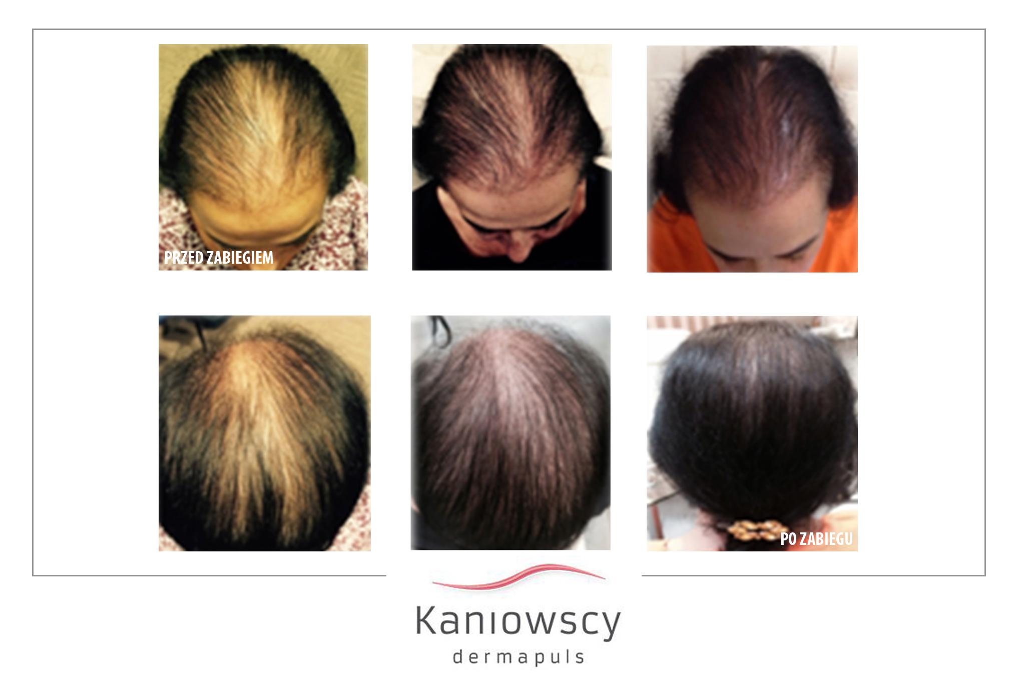 leczenie łysienia efekty zabiegu
