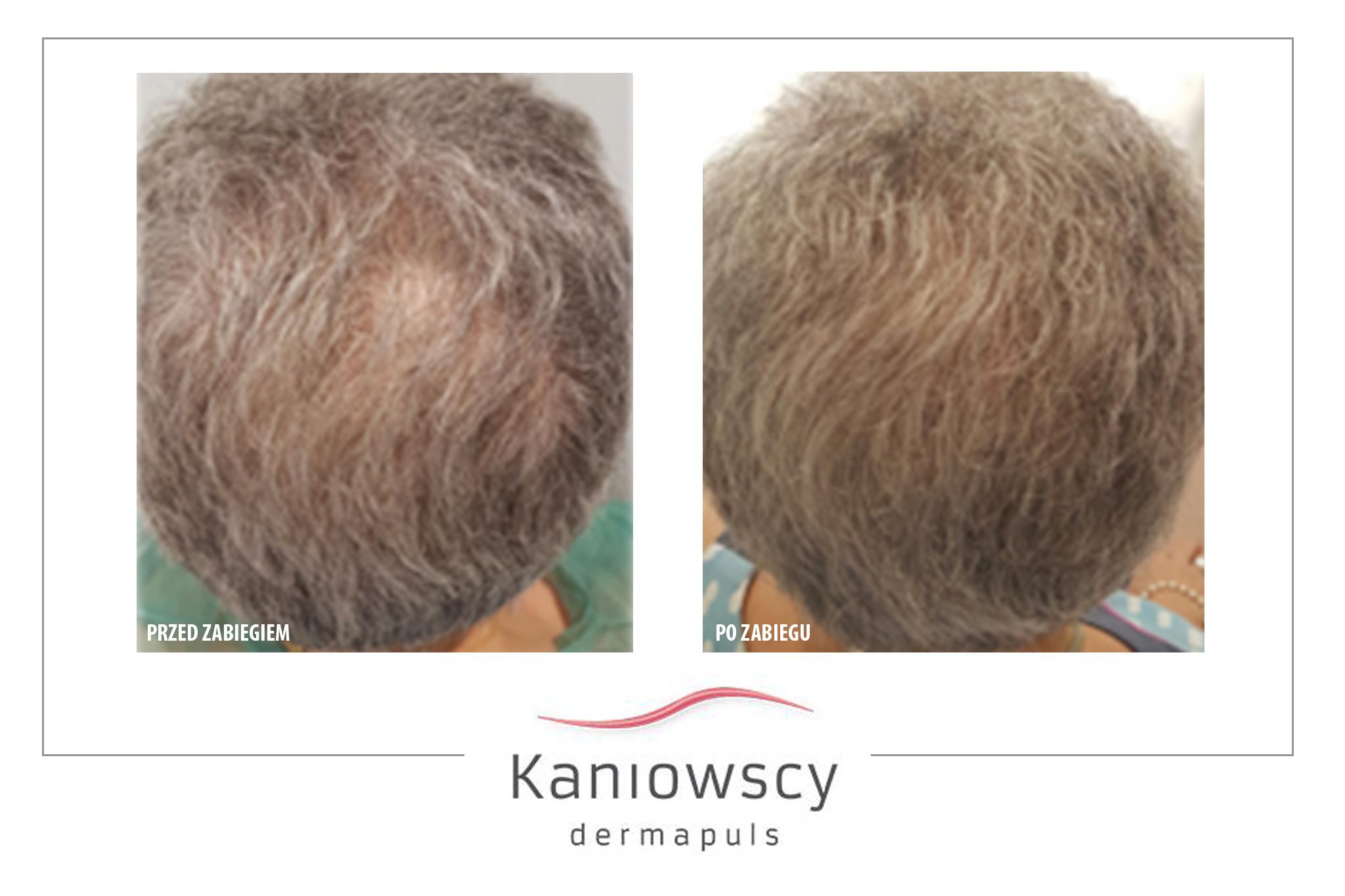 leczenie łysienia przed i po zabiegu