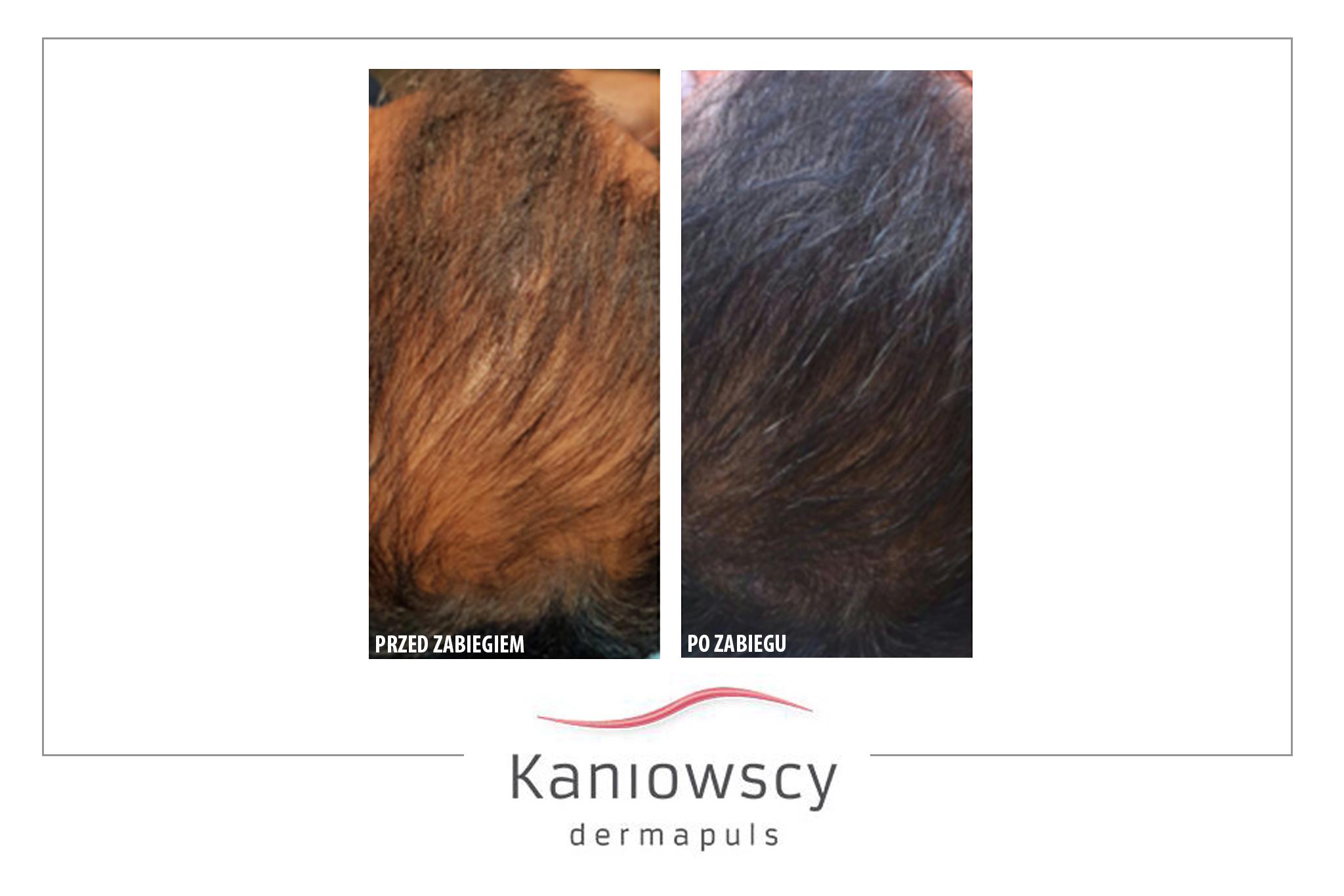 leczenie łysienie kaniowscy