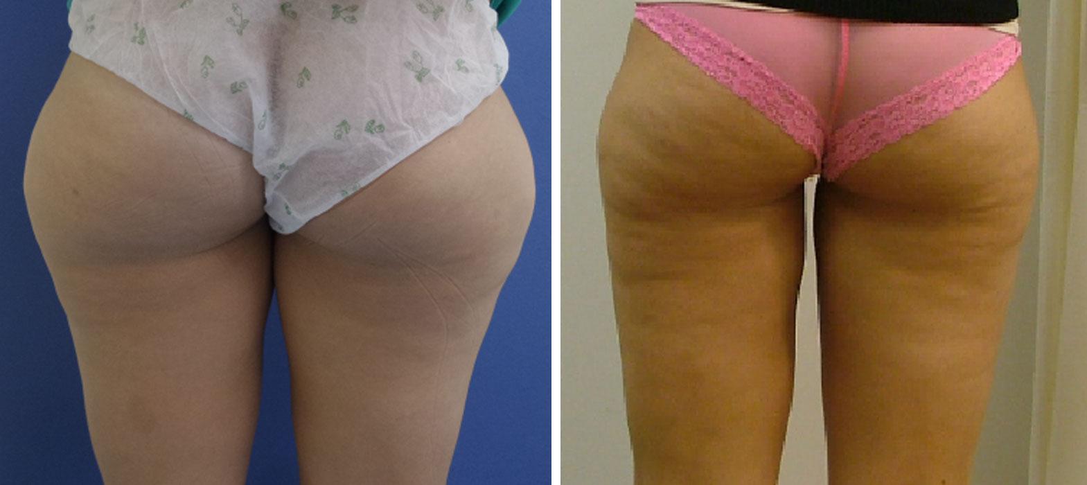 liposukcja kaniowscy przed i po