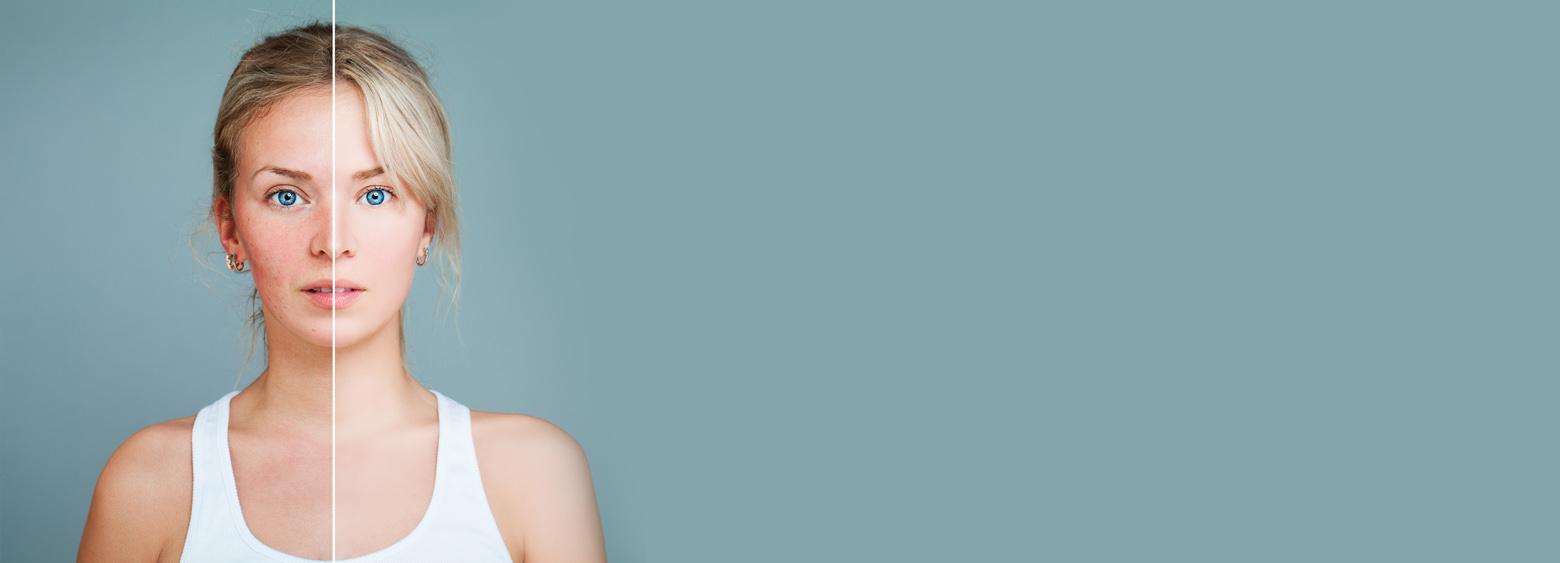 problemy medyczne skuteczny sposób na trądzik różowaty