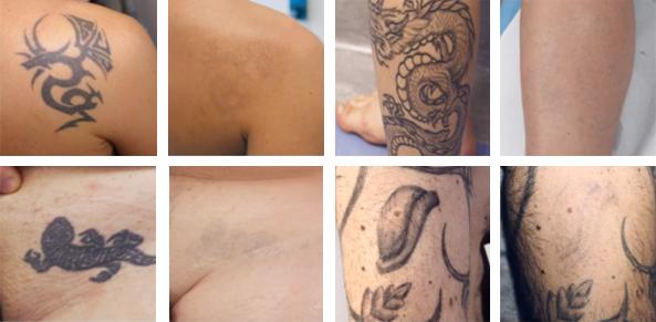 usuwanie tatuaży kaniowscy