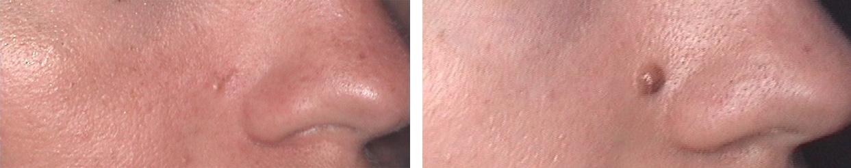 usuwanie zmian skórnych wrocław