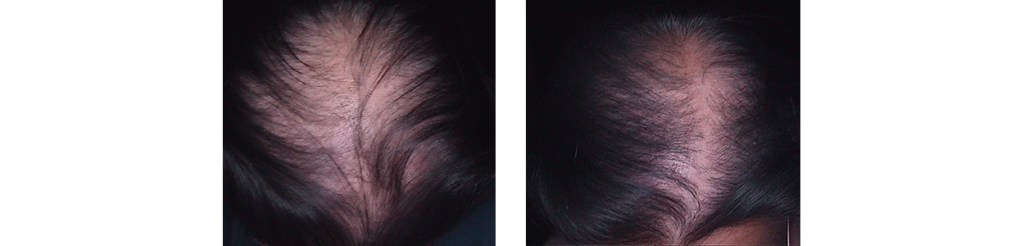 Karboksyterapia - efekty przed i po