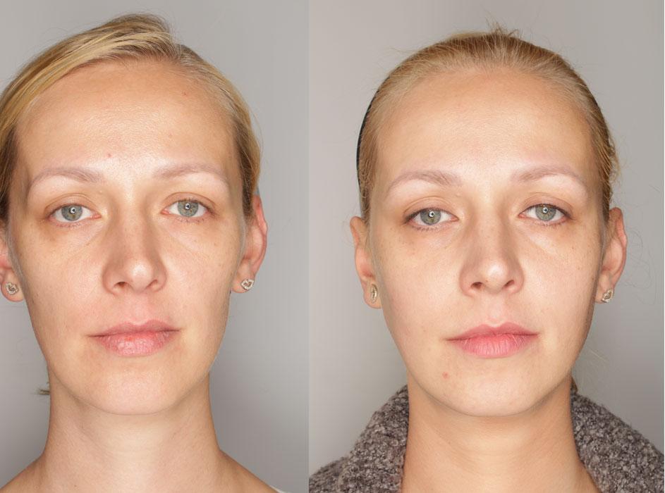 wolumetria twarzy efekty przed i po