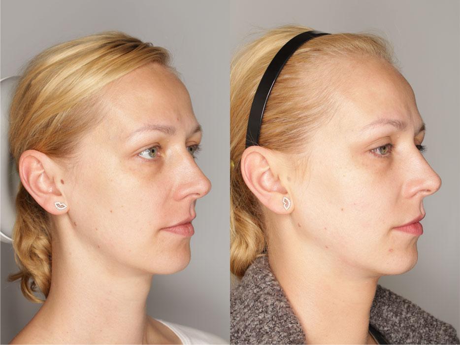 wolumetria twarzy efekty przed po