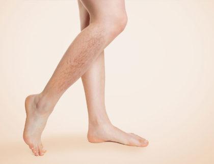 Usuwanie naczynek na nogach zabieg w klinice kaniowscy