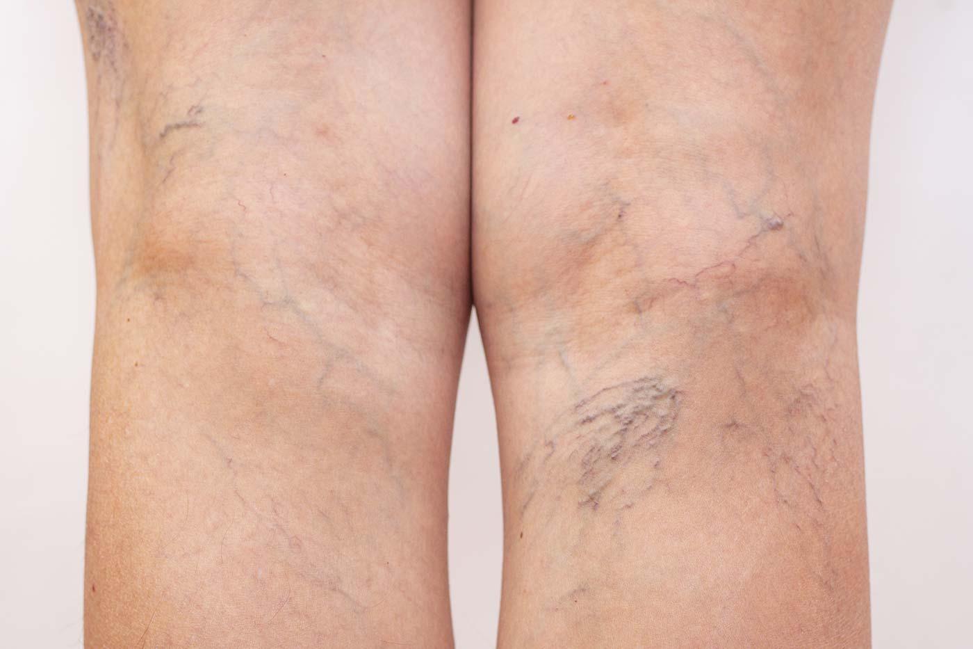 Usuwanie pajączków na nogach może być szybkie bezbolesne kaniowscy clinic