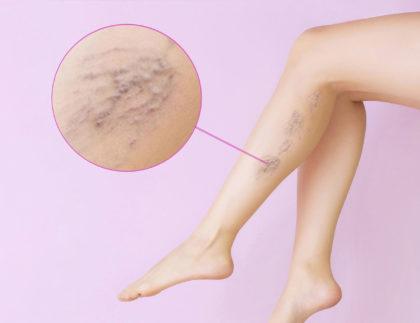 terapia żylaków usuwanie naczynek na ciele wrocław