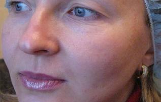 efekty zabiegu jalupro przed wrocław kaniowscy clinic
