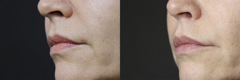 Jalu Toxin na twarz - efekt przed i po