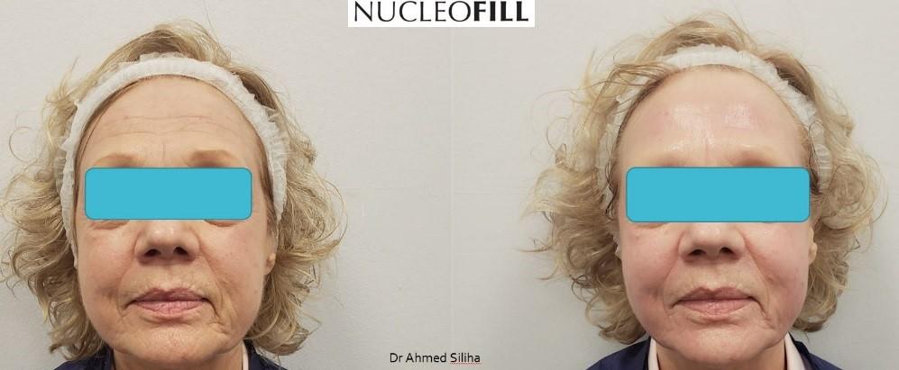 nucleofill kaniowscy efekty zabiegu
