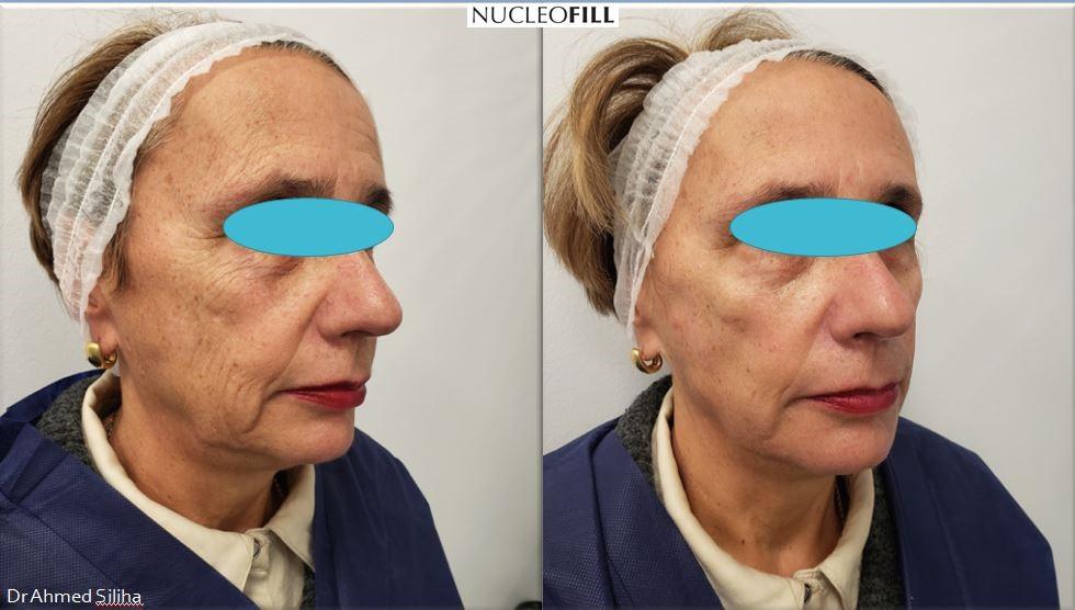 nucleofill widoczne efekty zabiegów