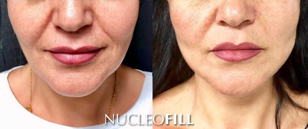nucleofill zabiegi przed i po