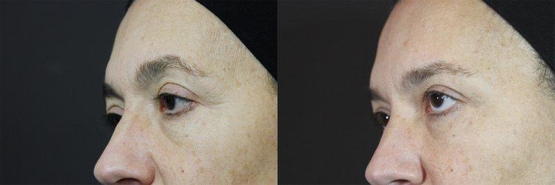 Powieka przed i po Jalu-Toxin