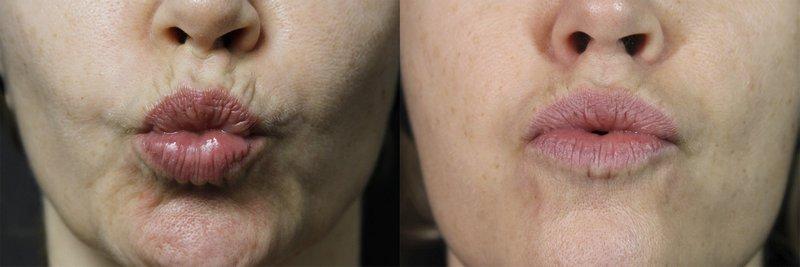 Usta przed i po Jalu-Toxin