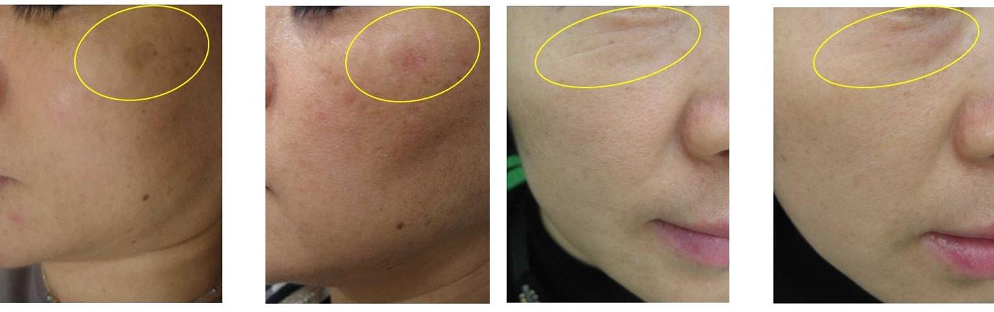Laser Tulowy Lavieen efekty zabiegu klinika wrocław