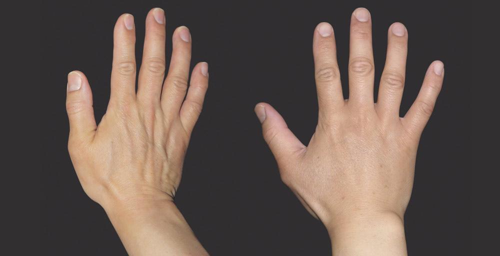 Wypełnienie kwasem hialuronowym efekty zabiegu kaniowscy clinic