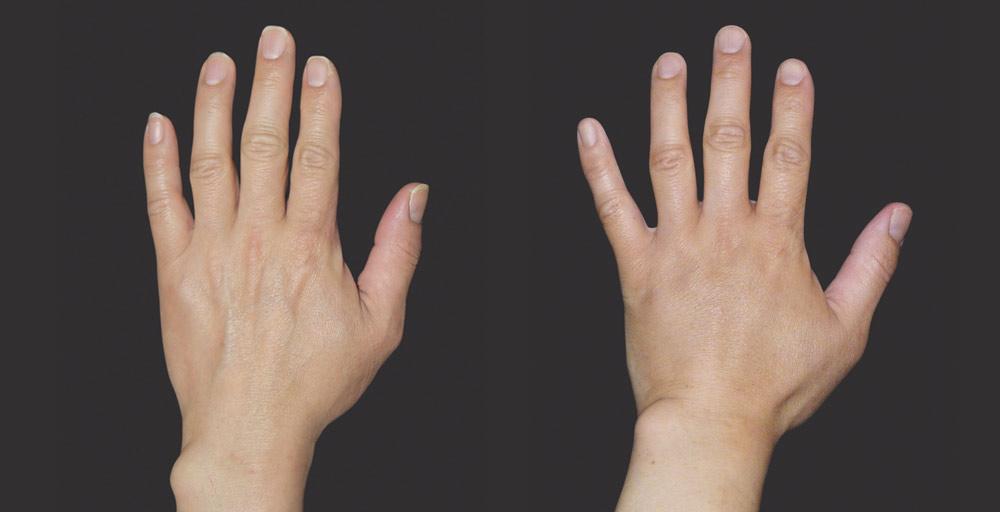 Wypełnienie kwasem hialuronowym efekty zabiegu