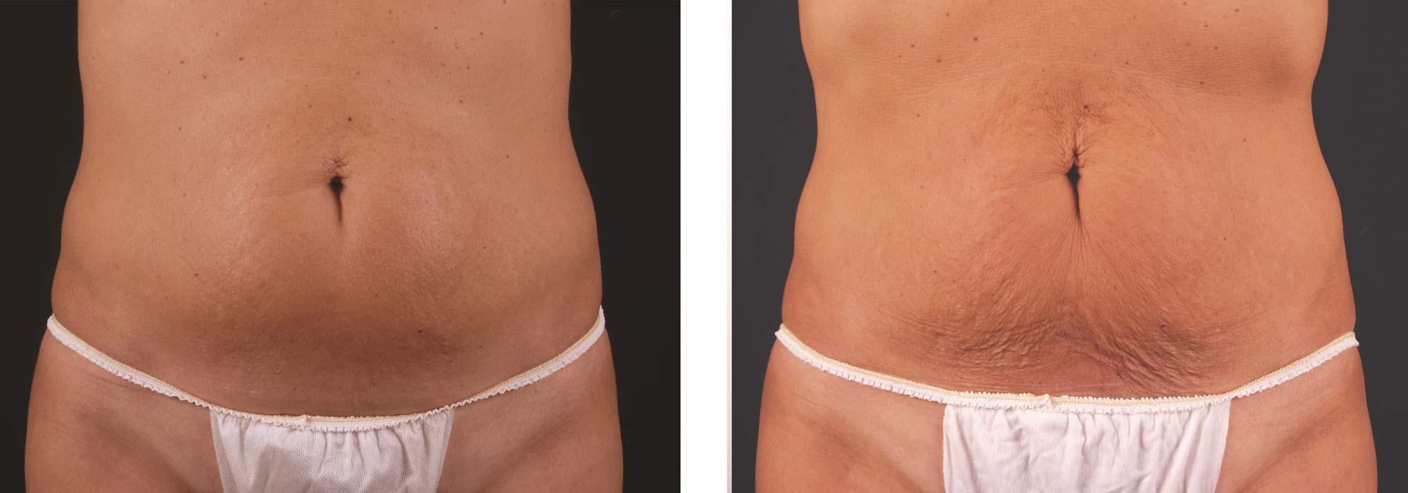 efekty zabiegów skinshock x-wave przed i po brzuch wrocław kaniowscy