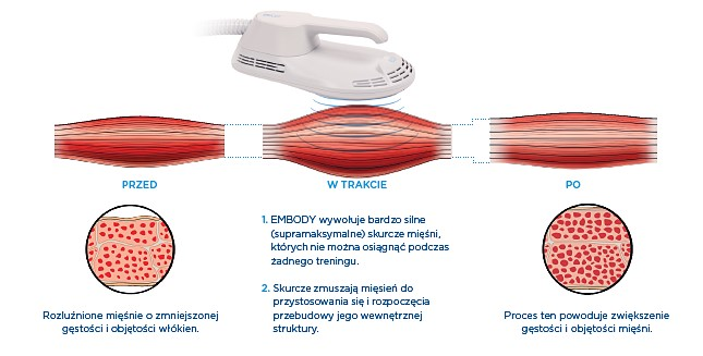 technologia HIFEM Kaniowscy Clinic